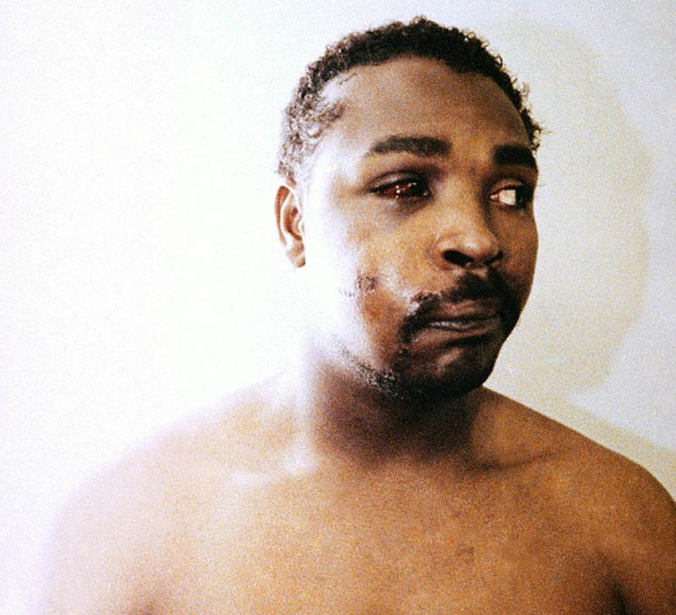 RODNEY KING (APPEARANCE 3 DAYS AFTER BEATING 3.6.92--KING DIES IN JUNE 2012 @ 47 YEARS OF AGE)